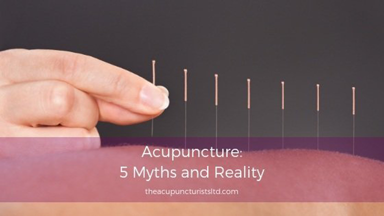Acupuncture 5 Myths And Reality