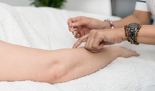 Acupuncture for Digestive Disorders in London