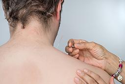 Acupuncture Treatments London