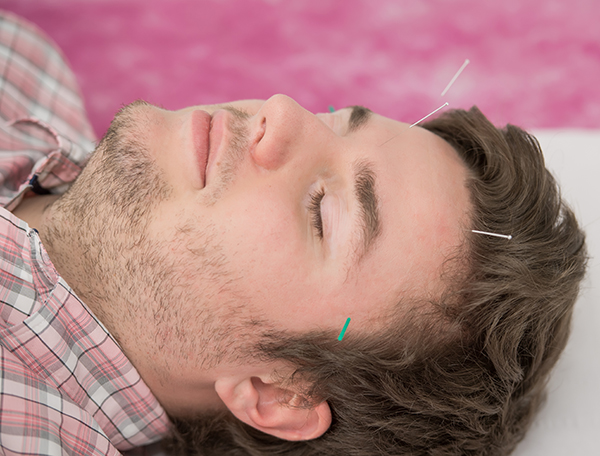 Acupuncture for Migraine and Headaches in London