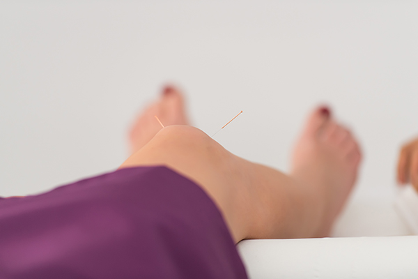 Acupuncture for Musculoskeletal Pain in London