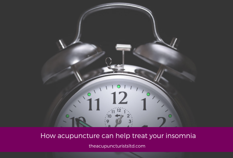 How Acupuncture Can Help Treat Your Insomnia